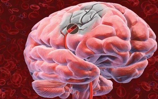 Лечение мозгового кровообращения