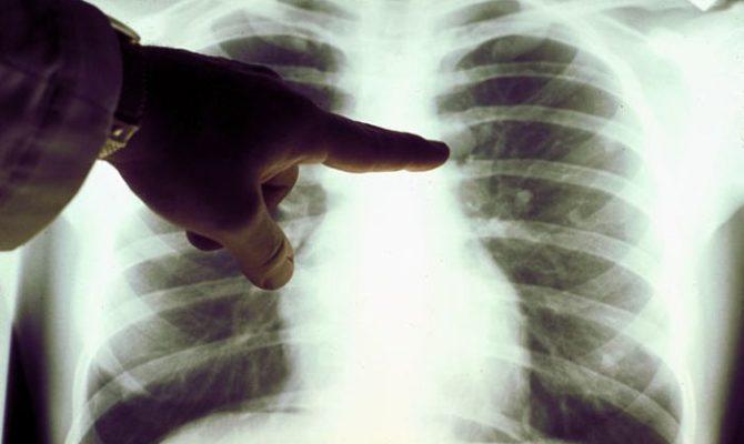Народная медицина лечение рака легких